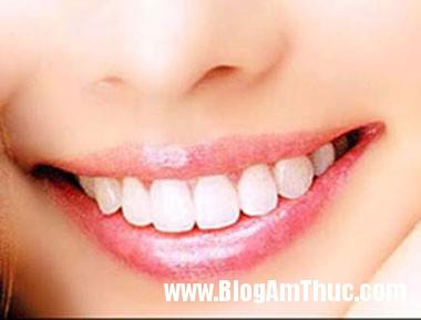 rang1 Bí quyết để có hàm răng trắng và sáng